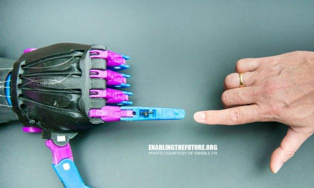 The e-NABLE Community– Robotic 3D Prosthetics Enables the Future of Disabled